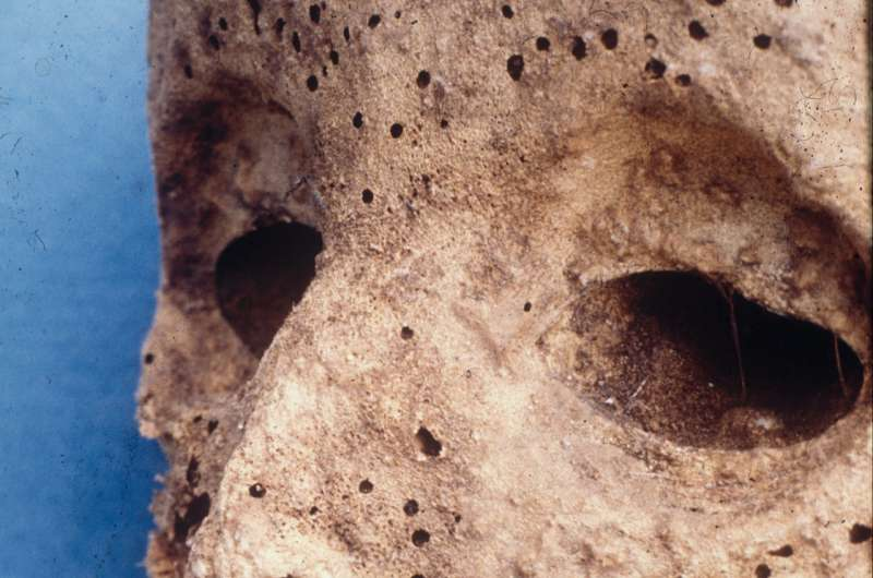 DNA analysis of ancient mummy, thought to have smallpox, points to Hepatitis B instead