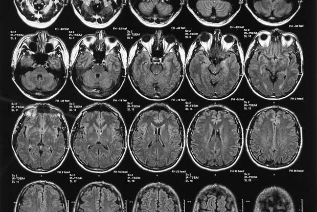 Do images of the brain make us more likely to believe what we read?