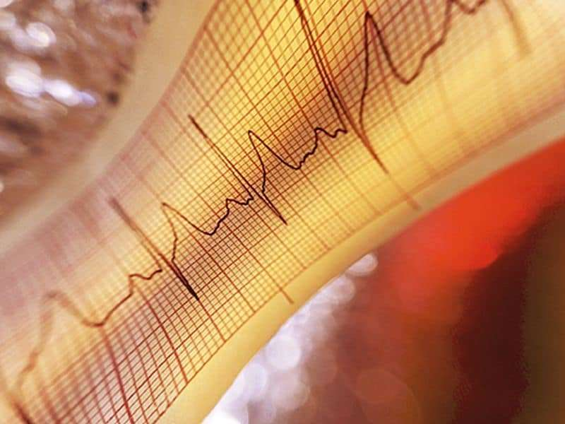 E-alerts dramatically cut heart attack rate for people hospitalized with A-fib