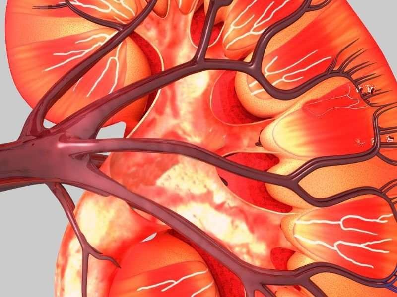 Early post-op APAP exposure may cut AKI risk in peds cardiac sx