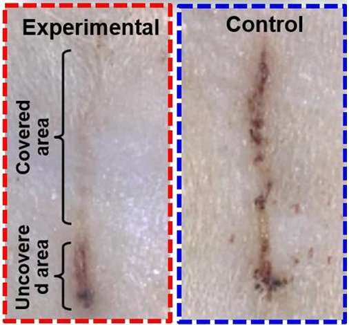 E-bandage generates electricity, speeds wound healing in rats
