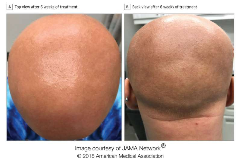 Eczema drug restores hair growth in patient with longstanding alopecia