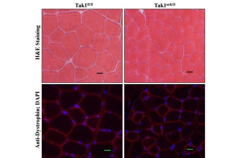 From black hat to white hat: Findings tip assumptions about TAK1 in muscle growth
