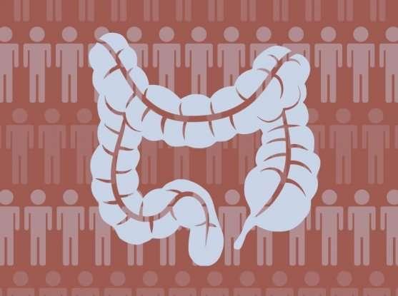 Identifying Crohn's disease risk factors in the Ashkenazi Jewish population