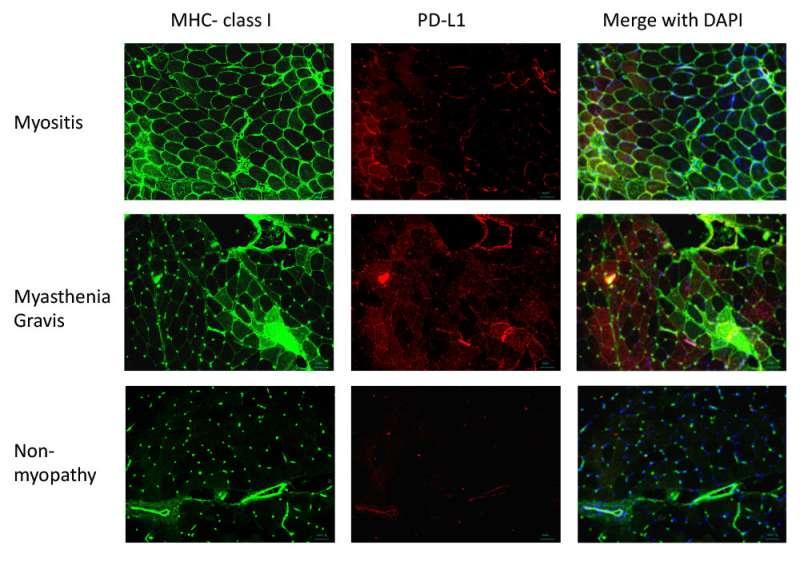 Immune checkpoints could be key to treating autoimmune disease myasthenia gravis