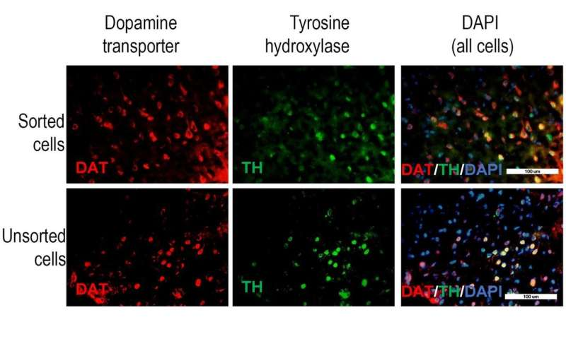 Improving cell replacement therapy for Parkinson's disease