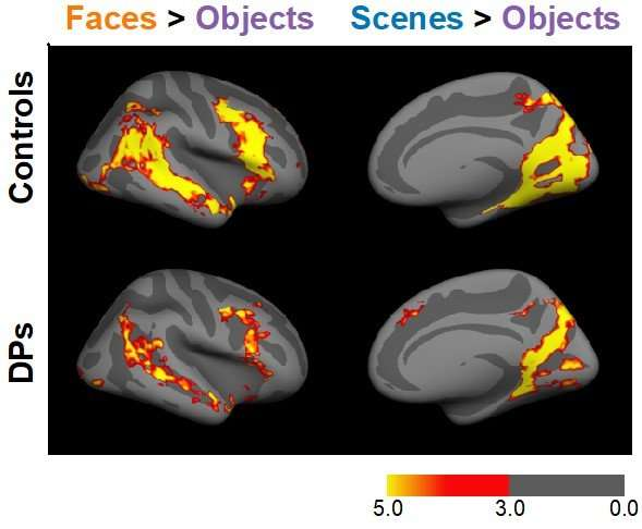 Inability to recognize faces linked to broader visual recognition problems