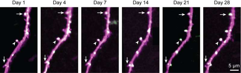 In mice, long-lasting brain proteins offer clues to how memories last a lifetime