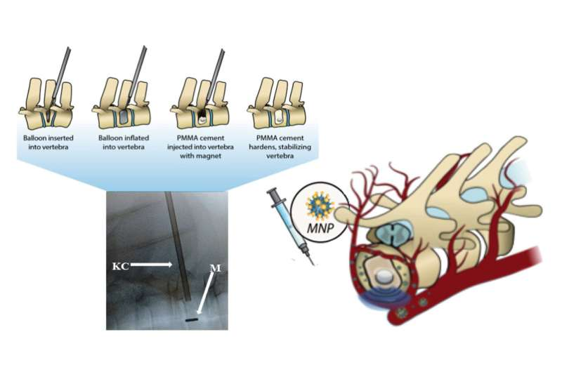 Magnetic surgical cement heals spinal fractures, provides targeted drug delivery