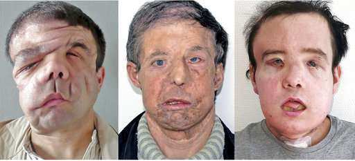 Man with 3 faces: Frenchman gets 2nd face transplant