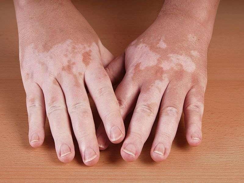 Microneedling + 5-fluorouracil effective vitiligo treatment