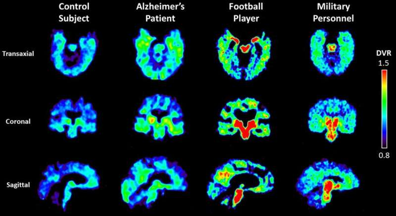 Molecular tracer, seen with PET scan, shows concentrations of abnormal proteins