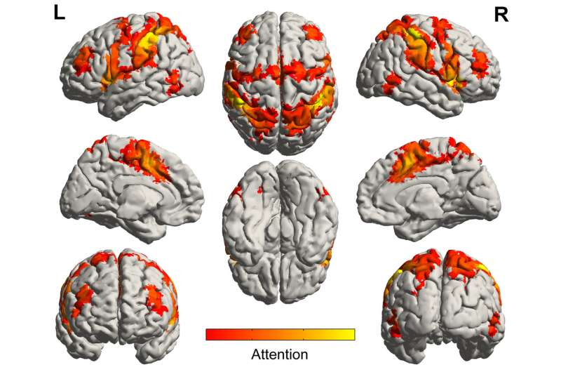 Music activates regions of the brain spared by Alzheimer's disease