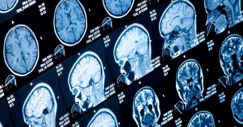 New brainstem changes identified in Parkinson's disease