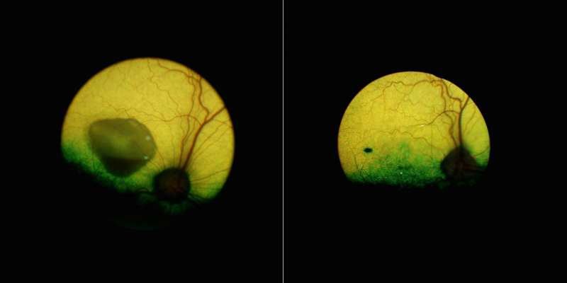 New gene therapy corrects a form of inherited macular degeneration in canine model