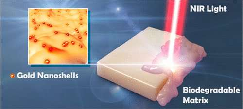 New method uses light and gold nanoparticles for highly targeted, non-invasive drug delivery