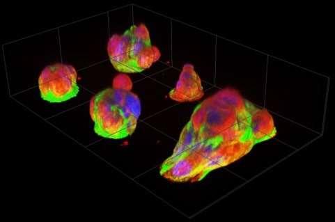 New micro-platform reveals cancer cells' natural behavior