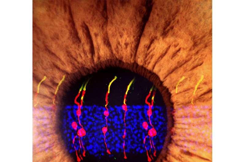 NIH-funded researchers reverse congenital blindness in mice