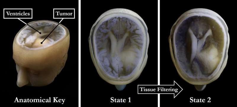 Now, you can hold a copy of your brain in the palm of your hand