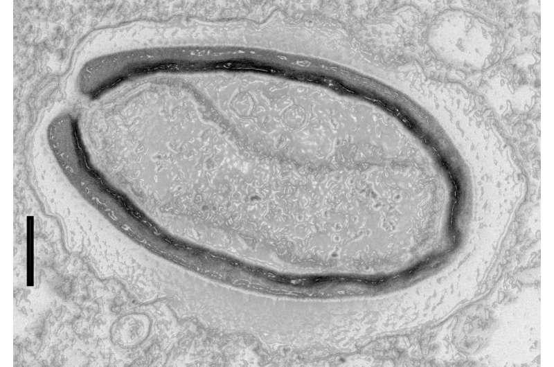 Pandoravirus: Giant viruses invent their own genes