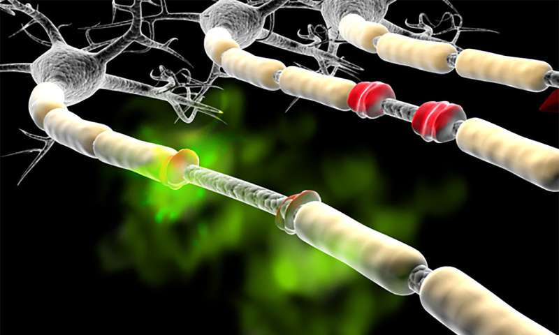 Possible biomarker for multiple sclerosis identified