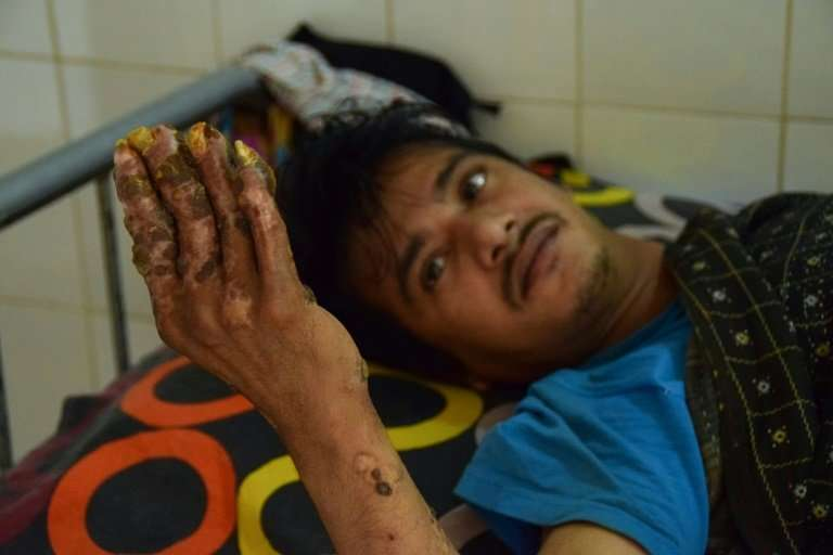 """Tree Man"" Abul Bajandar, who has been unable to work for years and whose young family lives in the hospital, says he"