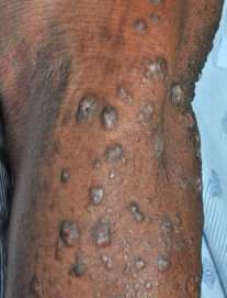 Racial differences uncovered in debilitating itchy skin condition