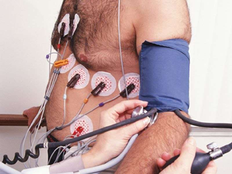 Rates of cardiac stress testing down but still higher in CKD