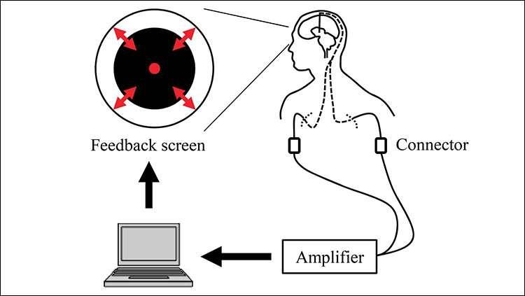 Real-time feedback tames Parkinson's brainwaves