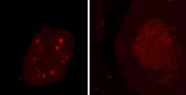 Rogue proteins may underlie some ALS and frontotemporal dementia cases, says study