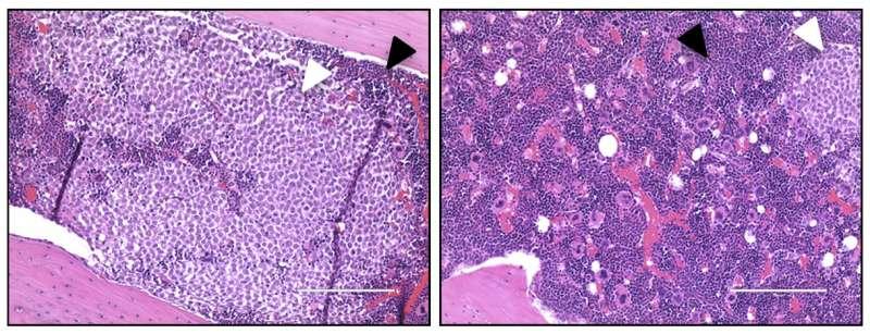 Single surface protein boosts multiple oncogenic pathways in acute myeloid leukemia