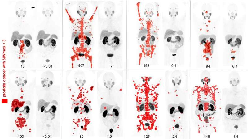 SNMMI image of the year: PSMA PET imaging of theranostic for advanced prostate cancer