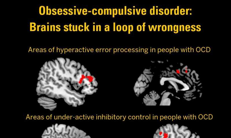 Stuck in a loop of wrongness: Brain study shows roots of OCD