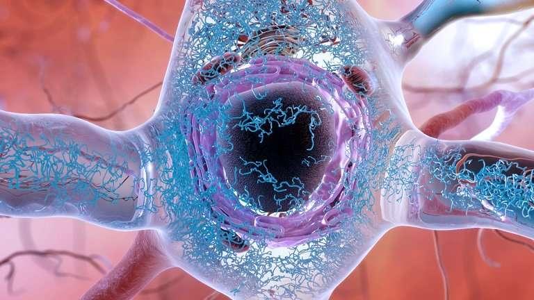 The 'Big Bang' of Alzheimer's: Scientists ID genesis of disease