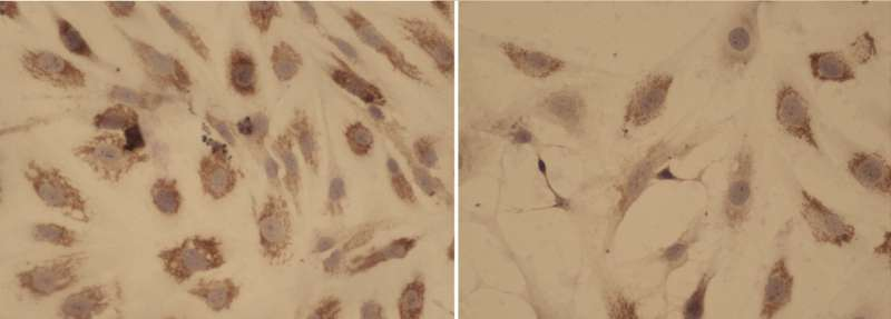 The CNIO and Hospital 12 de Octubre find a potential new combination therapy against a rare disease