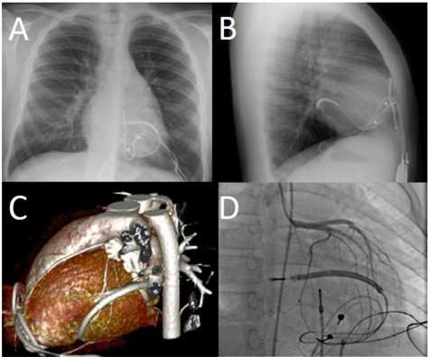 The danger of coronary artery compression in children is more common than we think