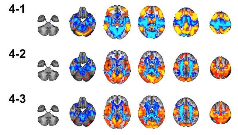 The increasingly efficient teenage brain