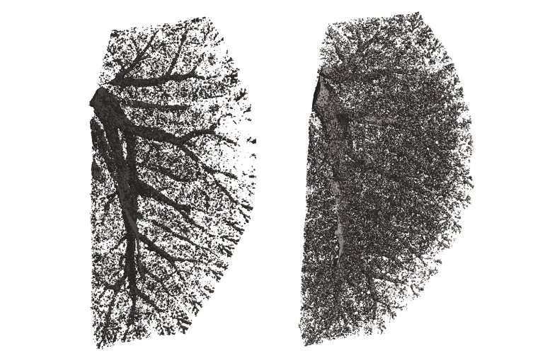 To better treat COPD, scientists look to tailored approaches for deadly lung disease