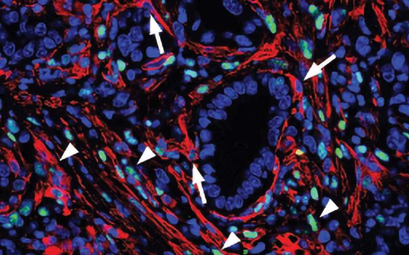 Turning cells against pancreatic cancer