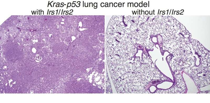 Two-pronged approach could curb many cases of lung cancer