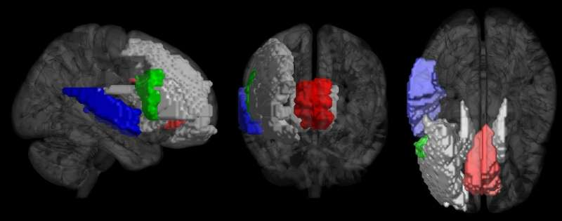 Your brain responses to music reveal if you're a musician or not