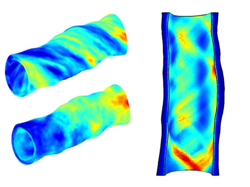Accounting for variability in vascular models