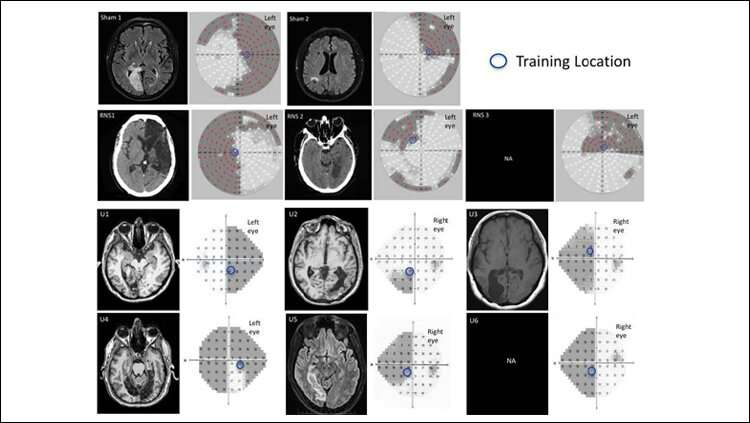 Brain stimulation speeds up visual learning and recovery