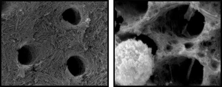 Immune system is potential culprit in causing cavities, damaging fillings