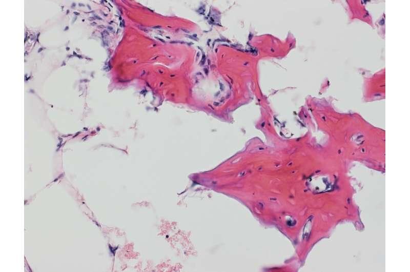 Johns Hopkins researchers define cells used in bone repair