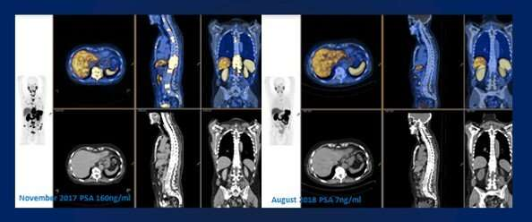 New combination therapy established as safe and effective for prostate cancer