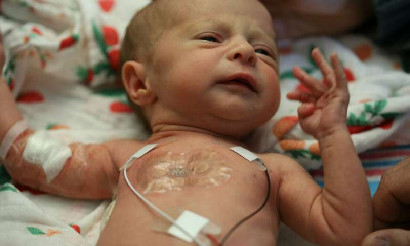 No wires, more cuddles: Sensors are first to monitor babies in the NICU without wires