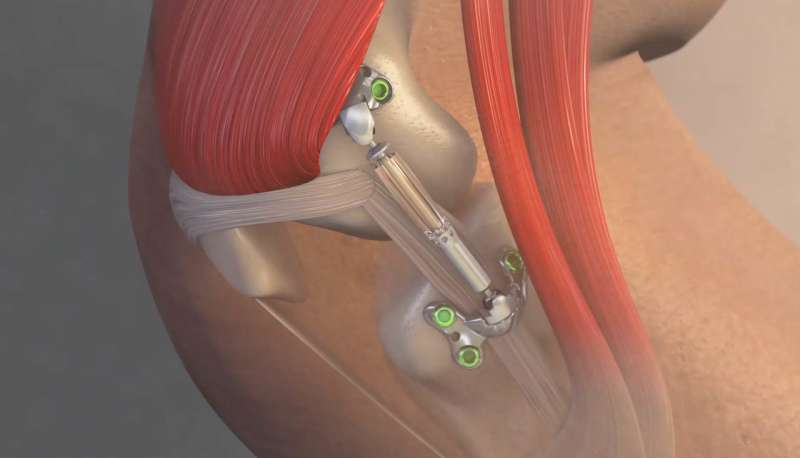OSU Wexner Medical Center first in US to implant device for knee osteoarthritis