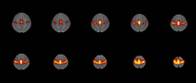 Prenatal opioid exposure may alter brain function in babies