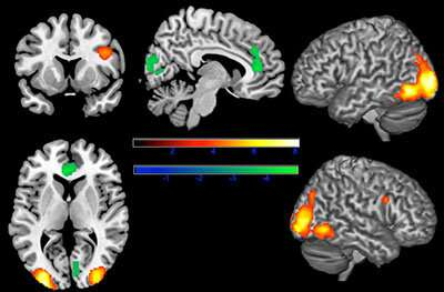 Seeing disfigured faces prompts negative brain and behavior responses
